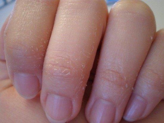 sírós bőrkeményedés az ujjak között
