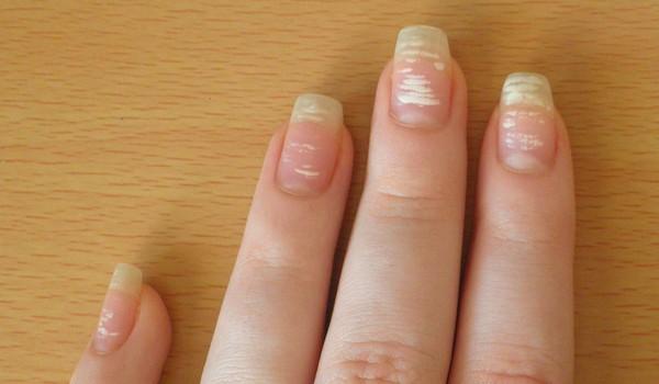vita fläckar på naglarna